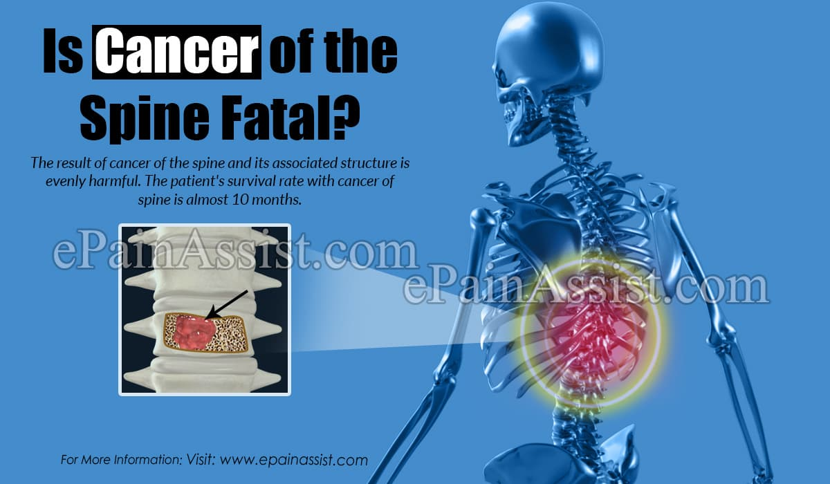 Is Cancer of the Spine Fatal?