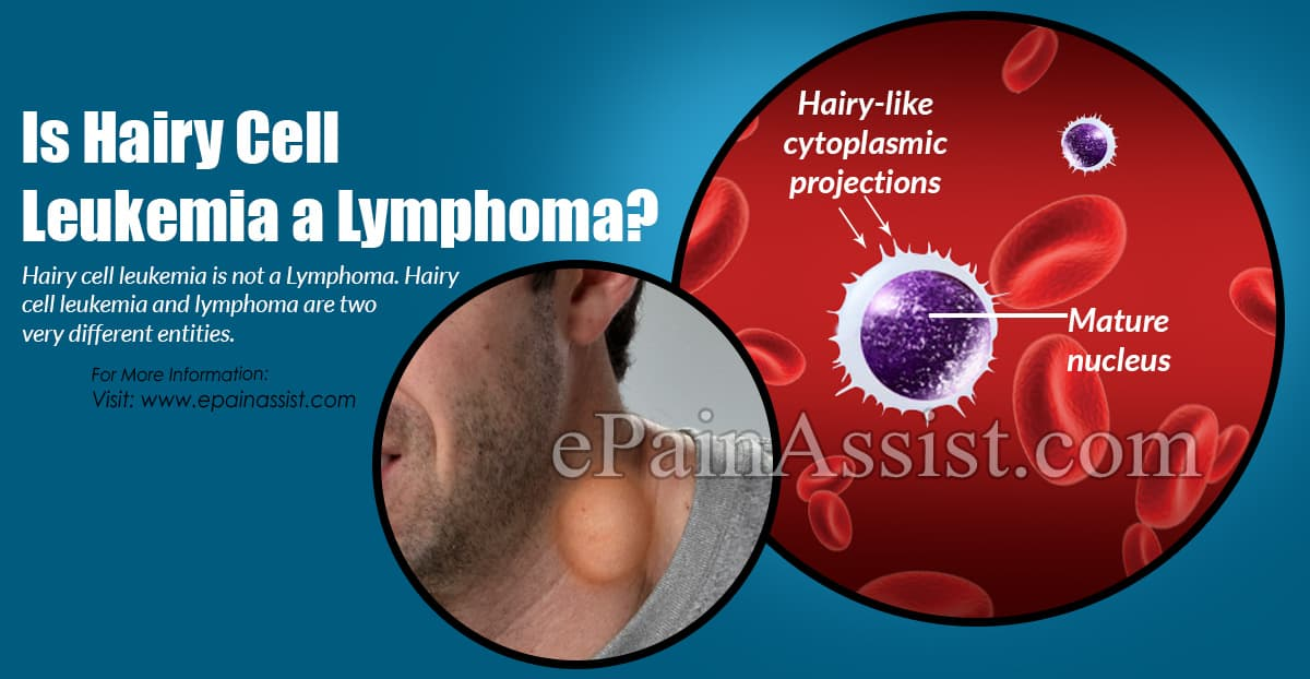 Is Hairy Cell Leukemia B cell Lymphoma?