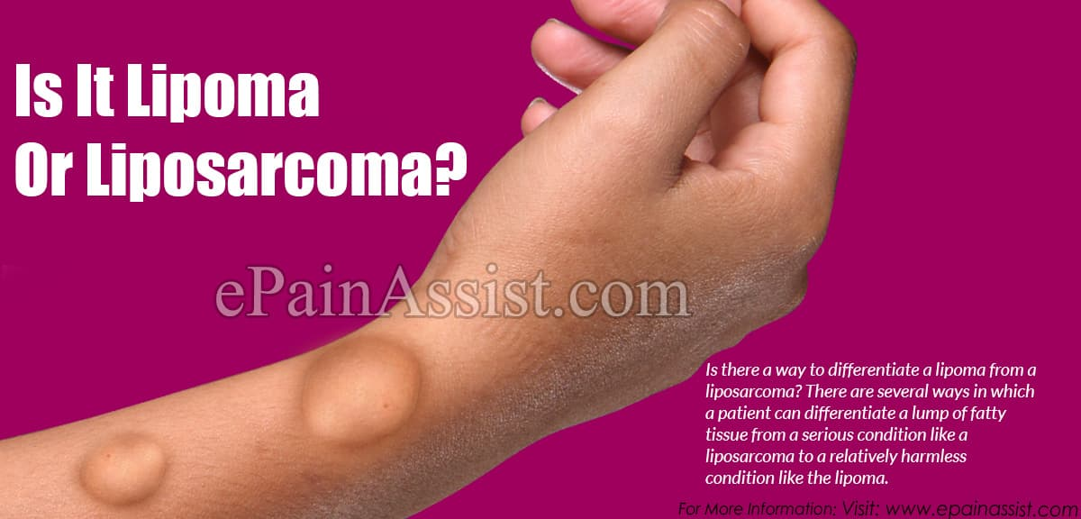 Is It Lipoma or Liposarcoma?