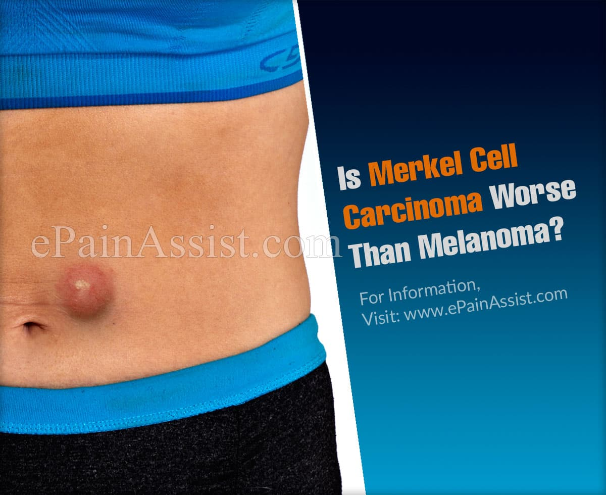 Is Merkel Cell Carcinoma Worse Than Melanoma?