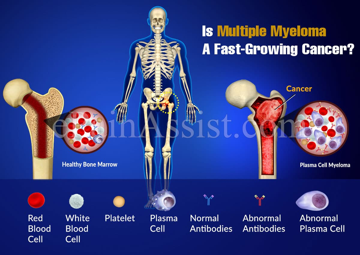 Is Multiple Myeloma A Fast-Growing Cancer?