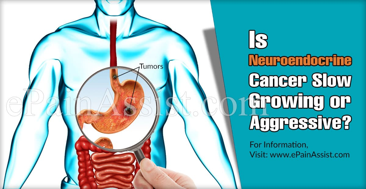 Is Neuroendocrine Cancer Slow Growing or Aggressive?