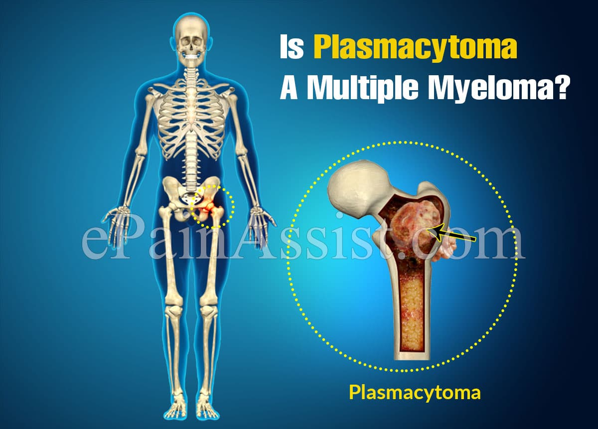 Is Plasmacytoma A Multiple Myeloma?