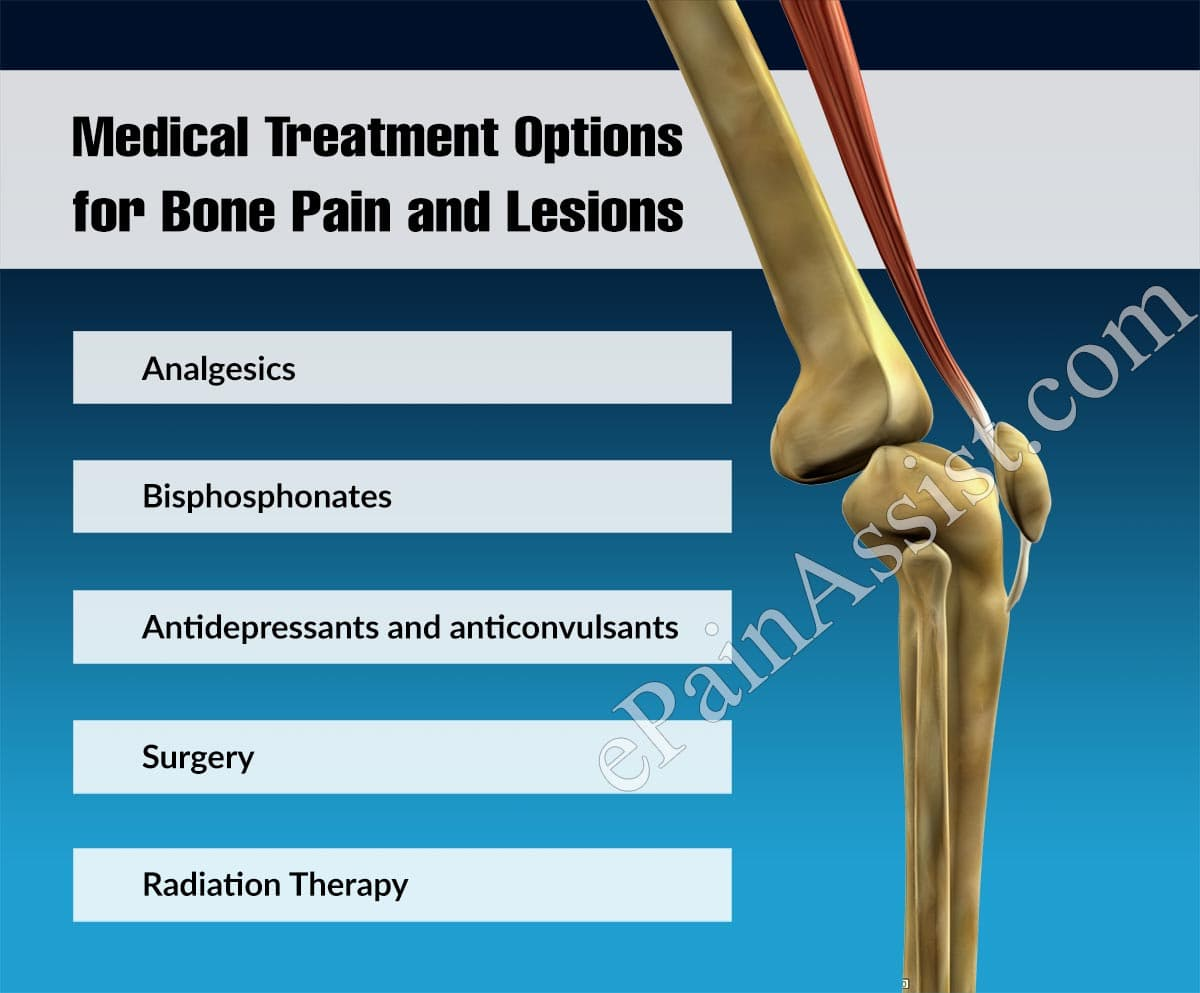 Medical Treatment Options for Bone Pain and Lesions