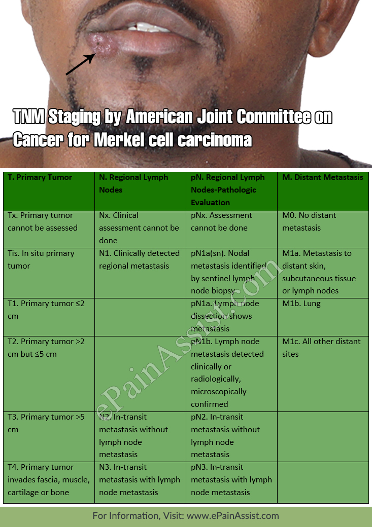 TNM Staging by American Joint Committee on Cancer for Merkel cell carcinoma