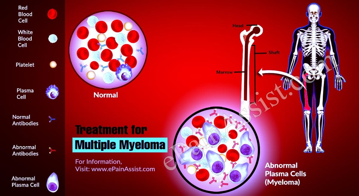 Treatment for Multiple Myeloma