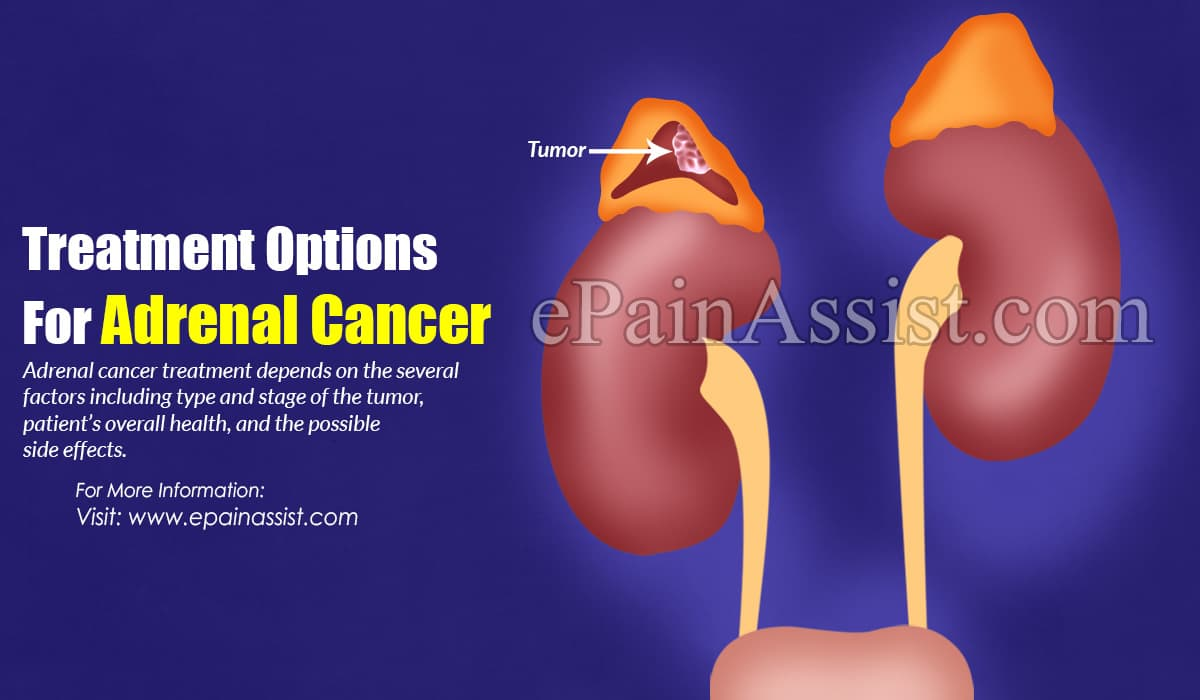 Treatment Options For Adrenal Cancer