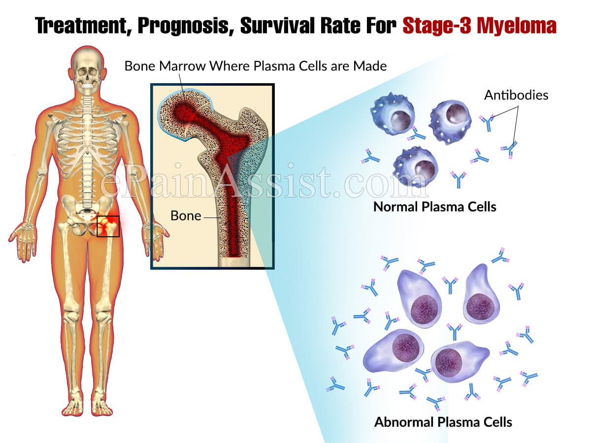 Treatment, Prognosis, Survival Rate For Stage-3 Myeloma