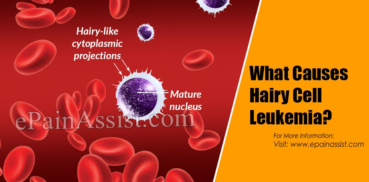 What Causes Hairy Cell Leukemia?