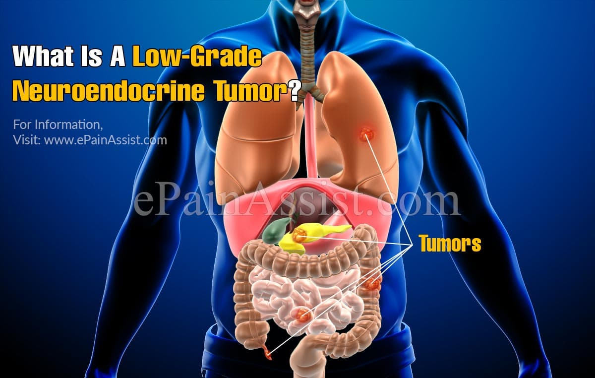 What Is A Low-Grade Neuroendocrine Tumor?