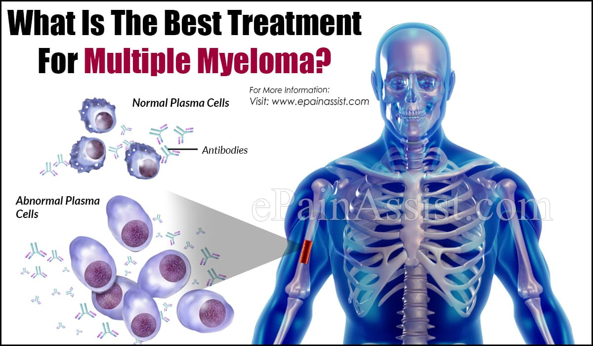 What Is The Best Treatment For Multiple Myeloma?