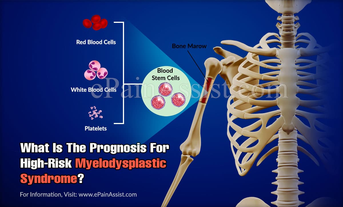 What Is The Prognosis For High-Risk Myelodysplastic Syndrome?