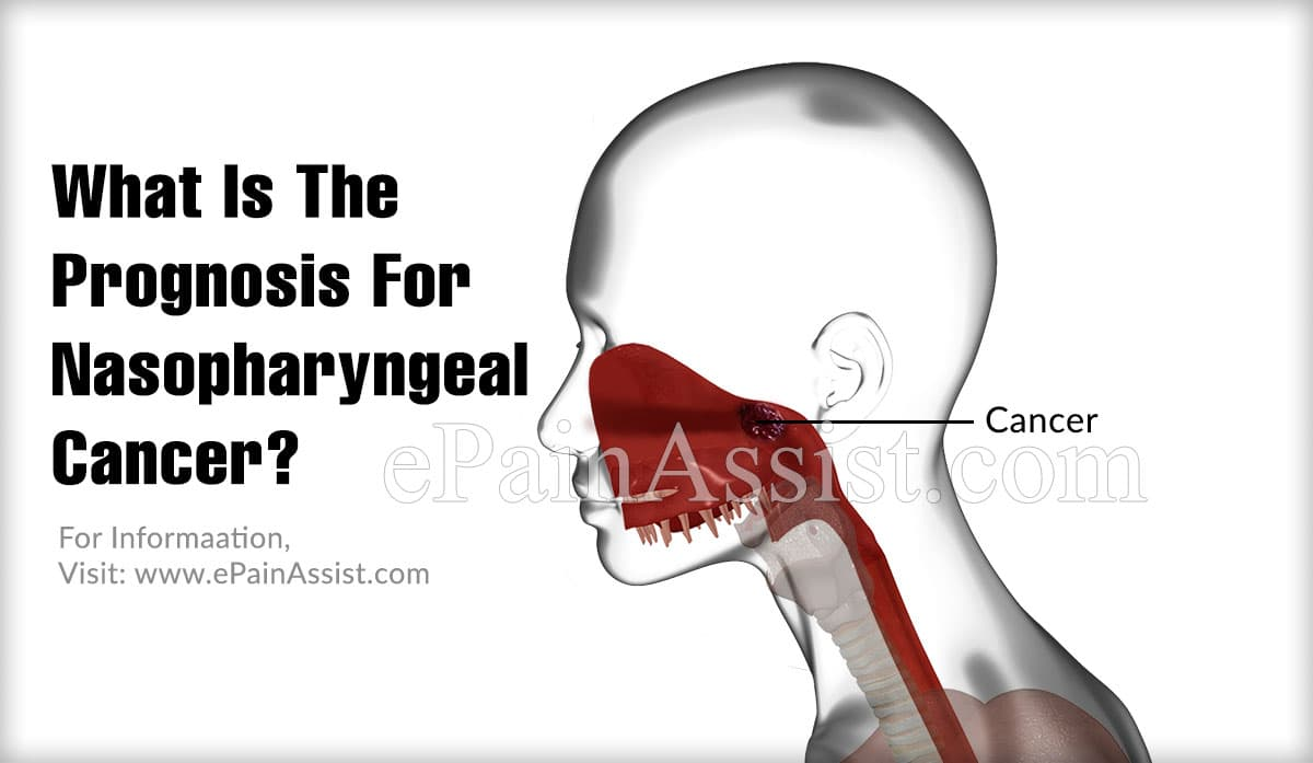 What Is The Prognosis For Nasopharyngeal Cancer?