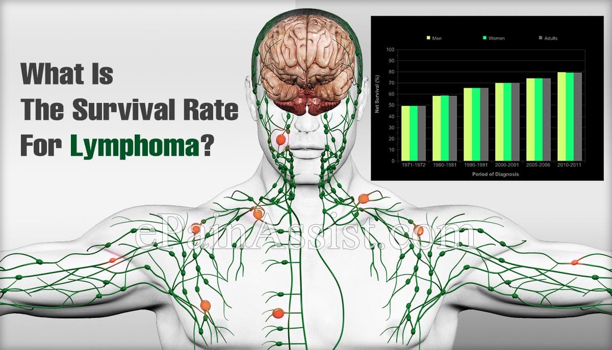 What Is The Survival Rate Of Non-Hodgkin's Lymphoma?