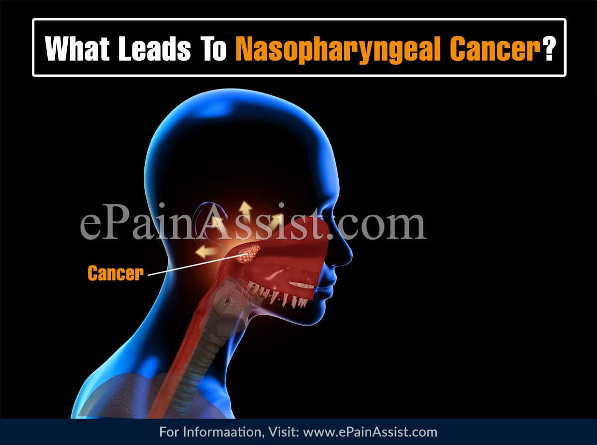 What Leads To Nasopharyngeal Cancer?