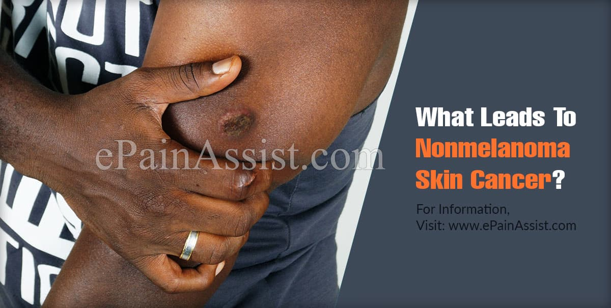 What Leads To Nonmelanoma Skin Cancer?
