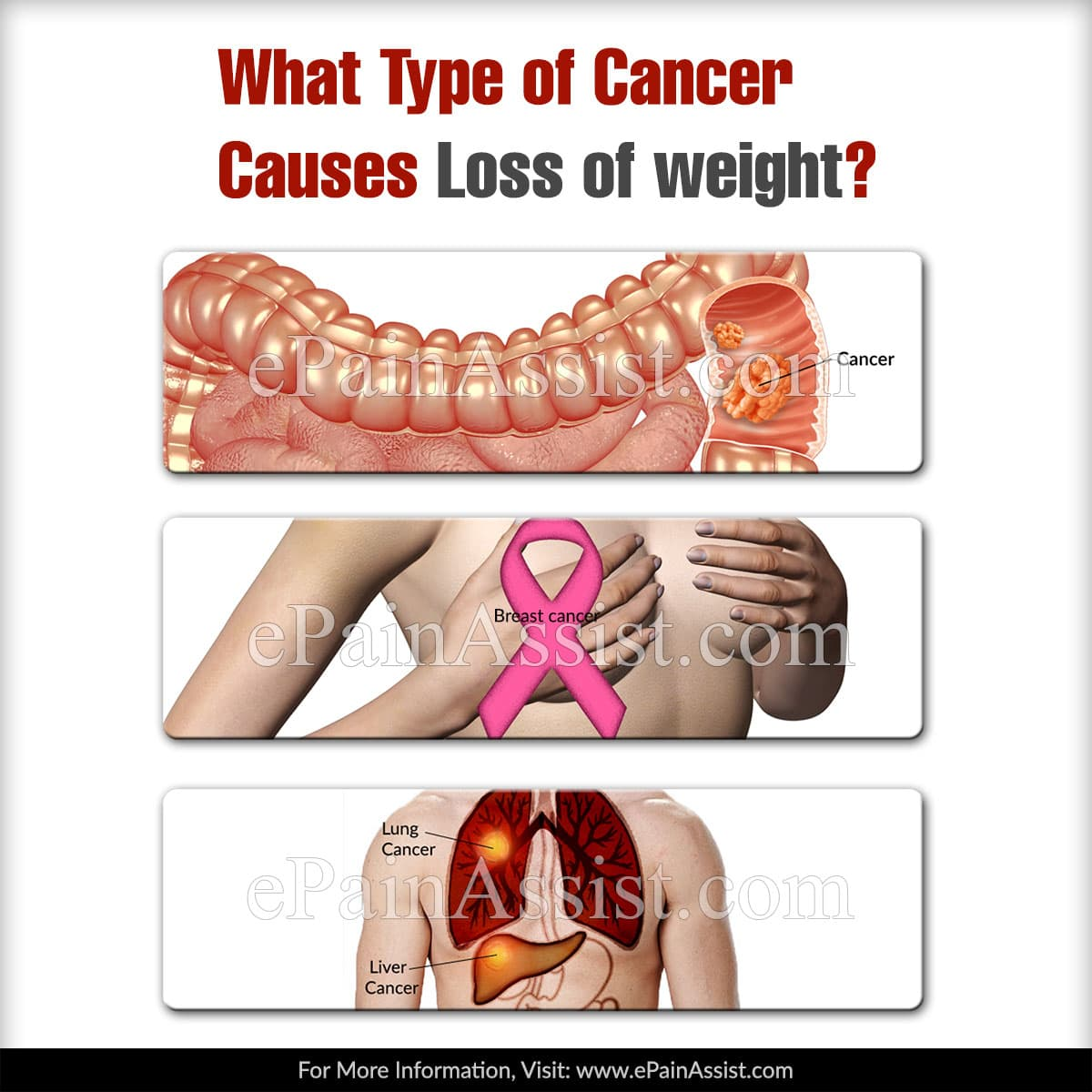 What Type of Cancer Causes Loss of Weight?