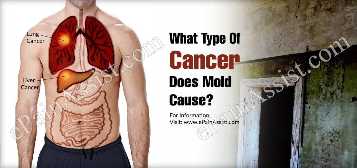 What Type Of Cancer Does Mold Cause?