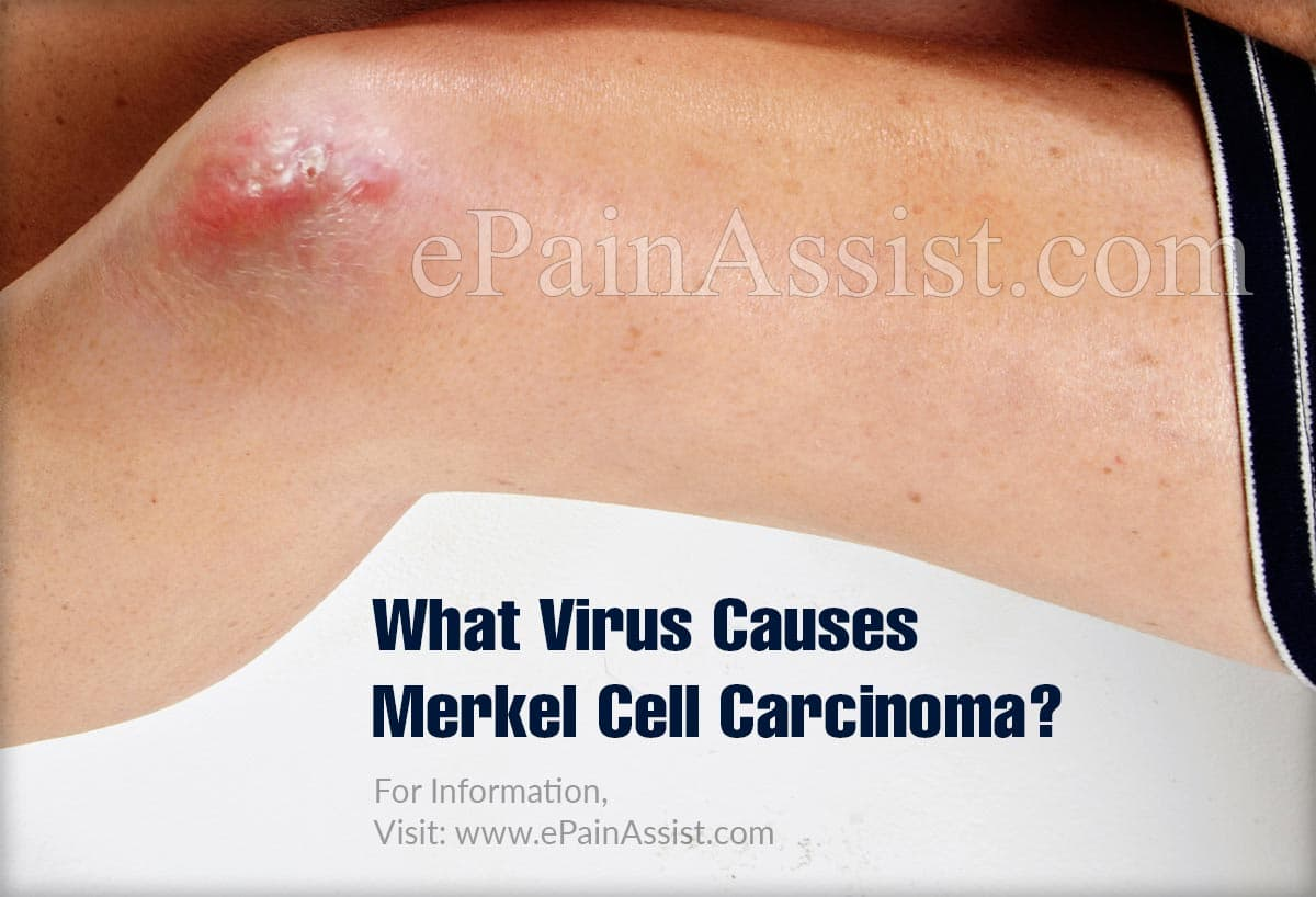 What Virus Causes Merkel Cell Carcinoma?