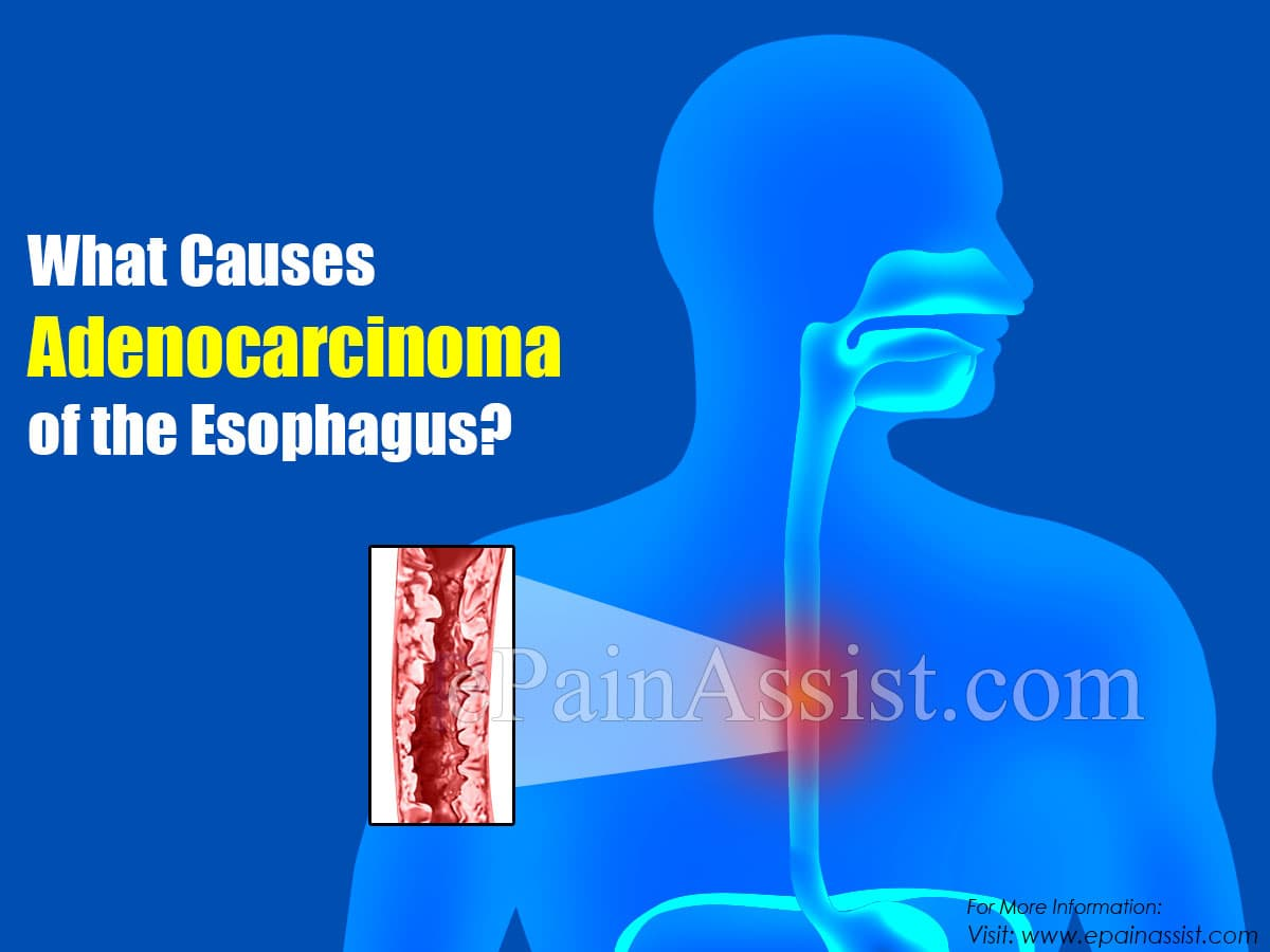 What Causes Adenocarcinoma of the Esophagus?