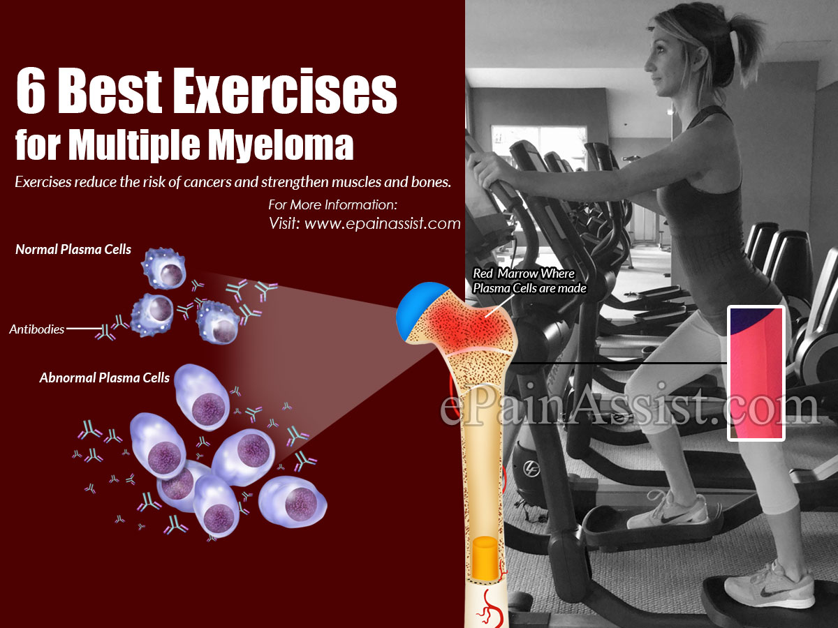 Best Exercises for Multiple Myeloma