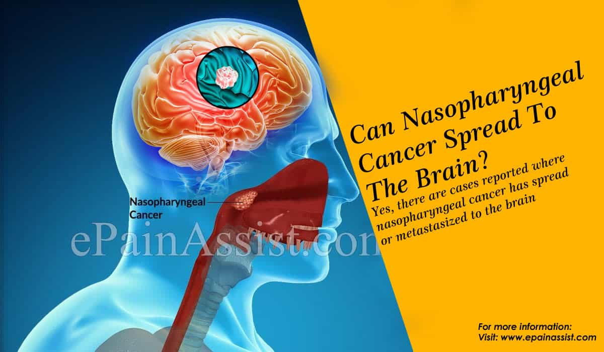 Can Nasopharyngeal Cancer Spread To The Brain?