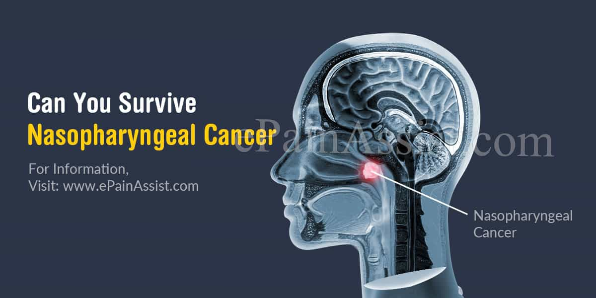 Can You Survive Nasopharyngeal Cancer