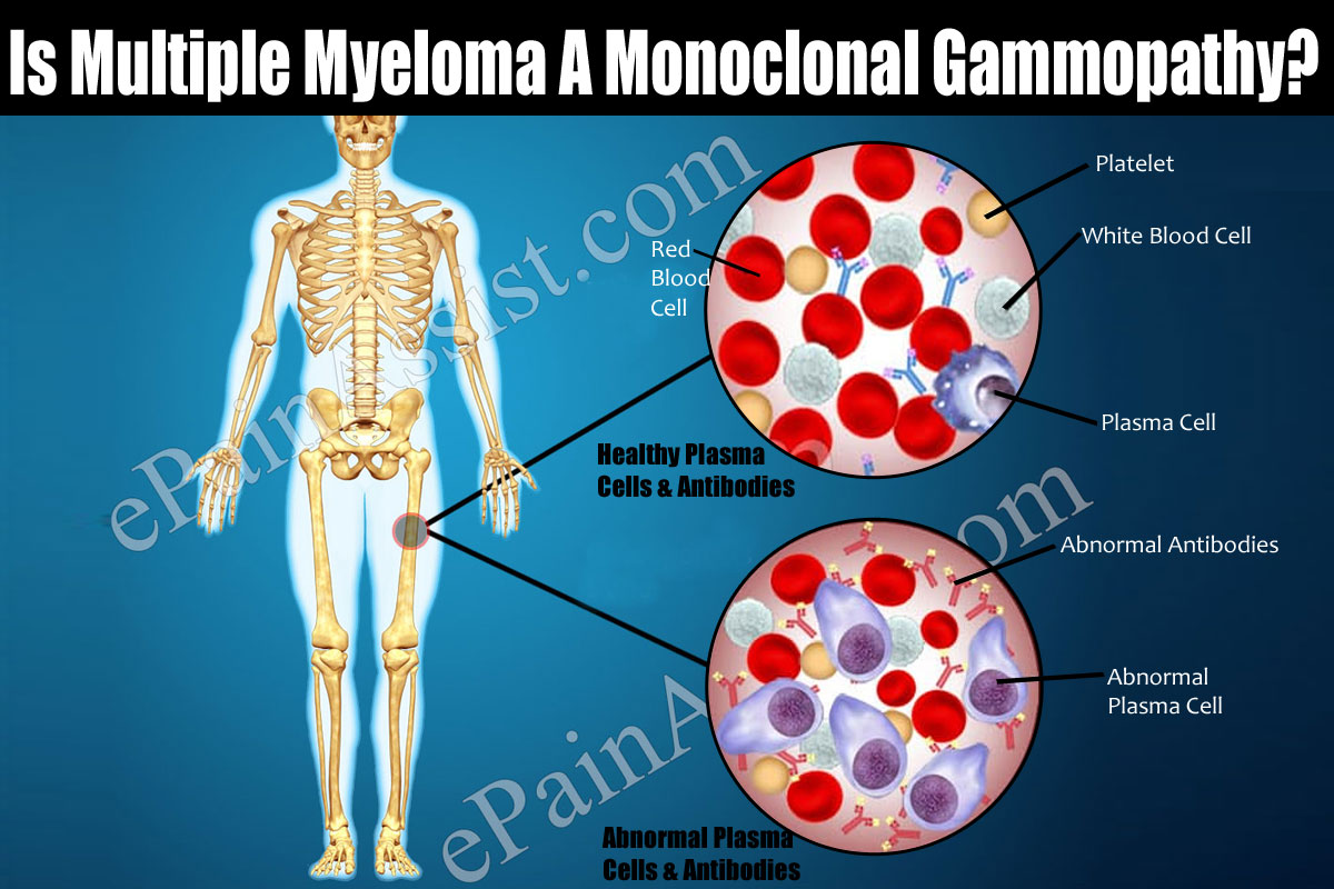 Is Multiple Myeloma A Monoclonal Gammopathy?