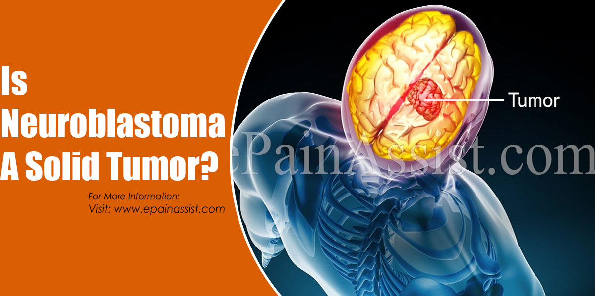 Is Neuroblastoma A Solid Tumor?