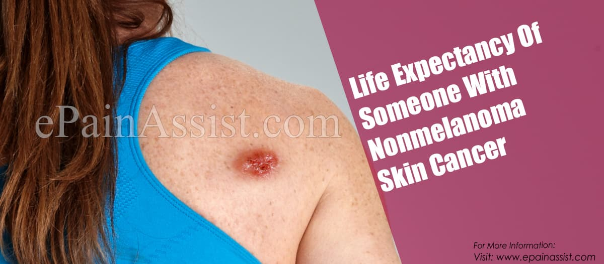 Life Expectancy Of Someone With Nonmelanoma Skin Cancer