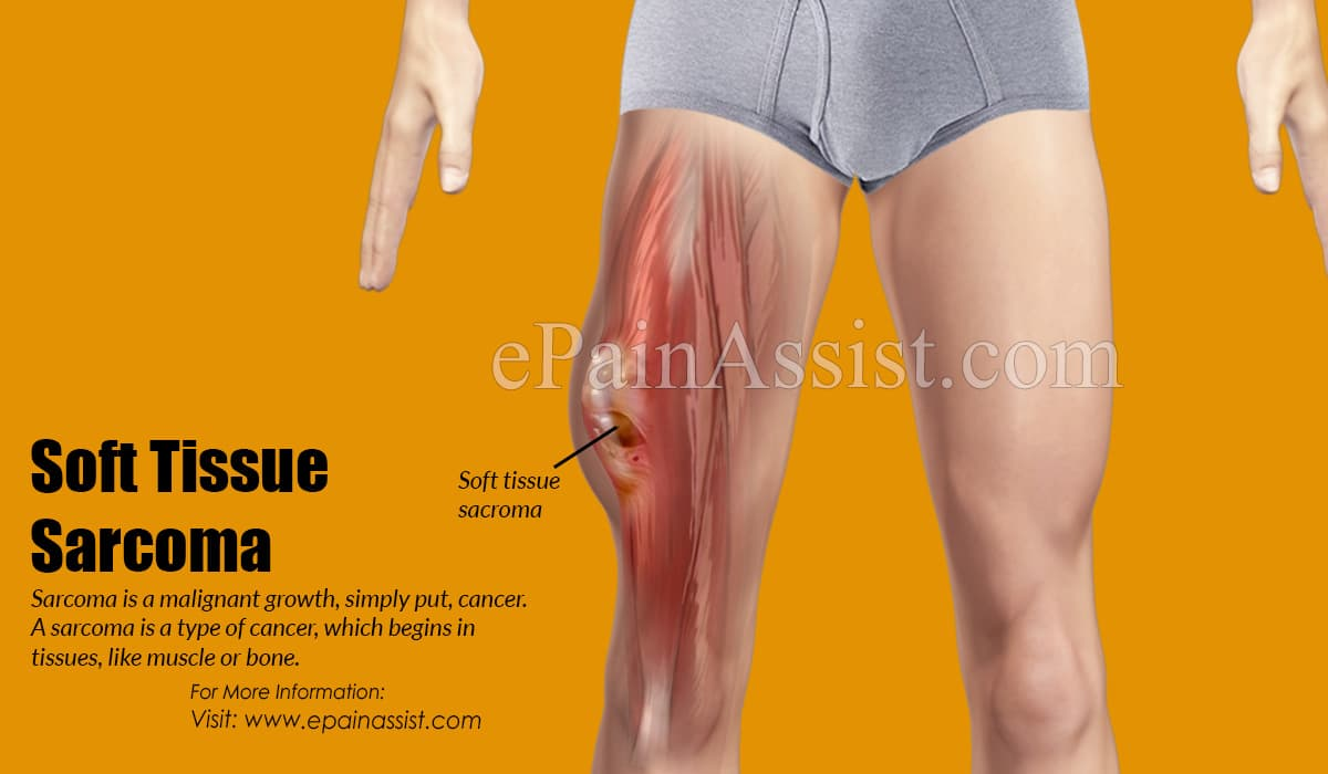 Stages of Soft Tissue Sarcomas