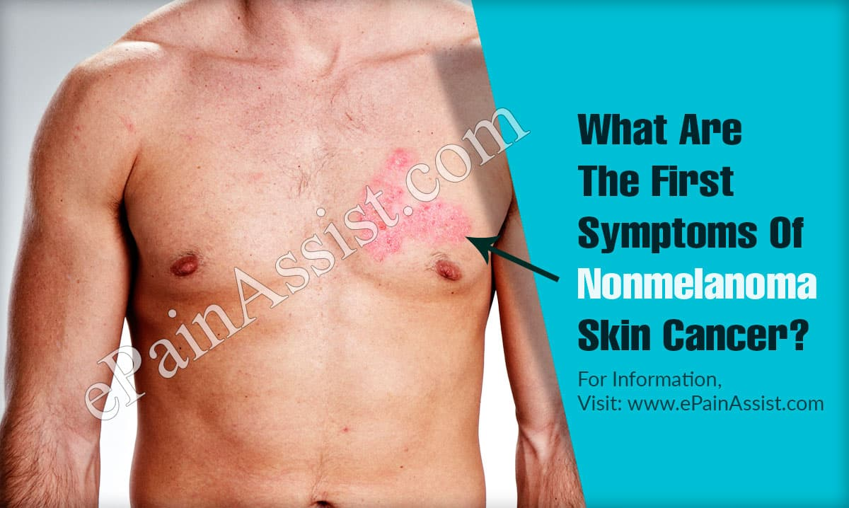 What Are The First Symptoms Of Nonmelanoma Skin Cancer?