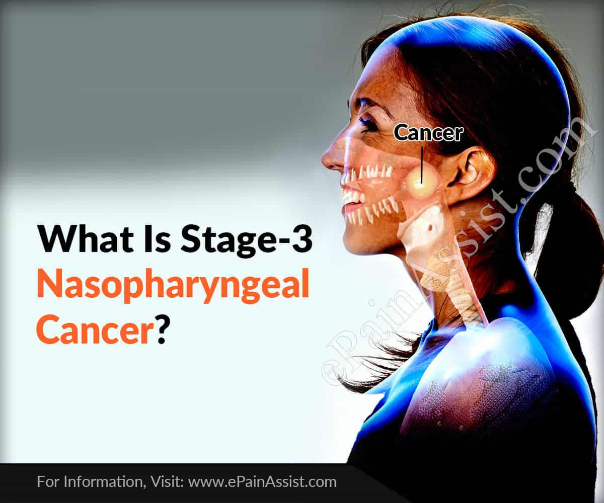 What Is Stage-3 Nasopharyngeal Cancer?