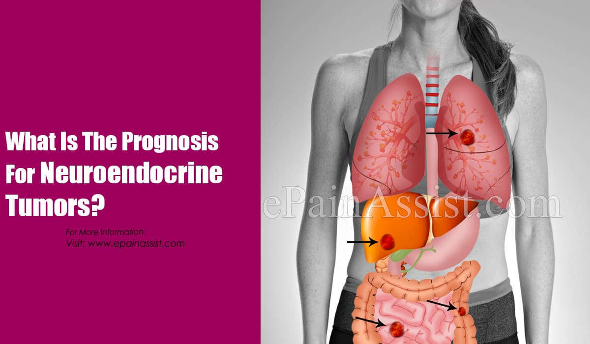 What Is The Prognosis For Neuroendocrine Tumors?