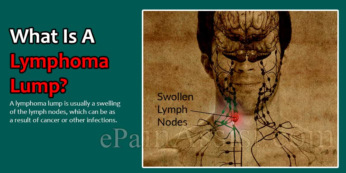 What Is A Lymphoma Lump?