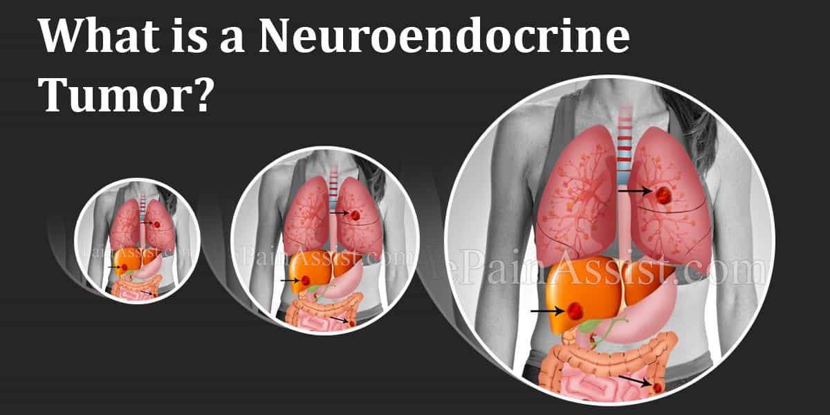 What is a Neuroendocrine Tumor?