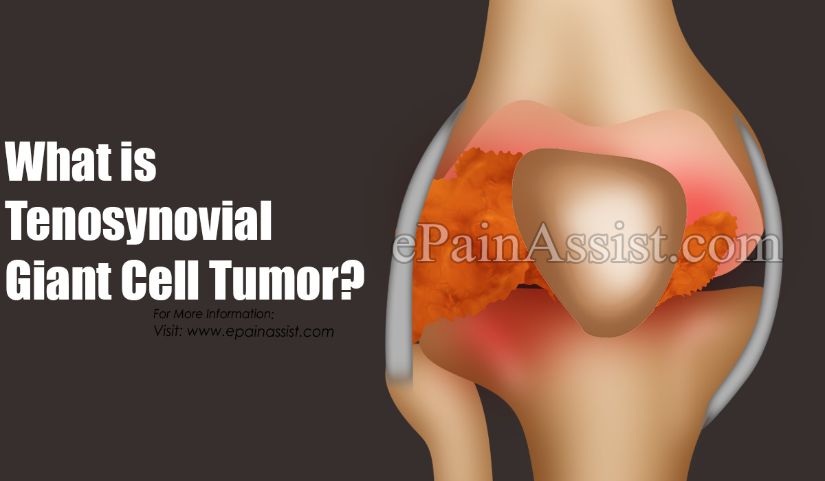 What is Tenosynovial Giant Cell Tumor?