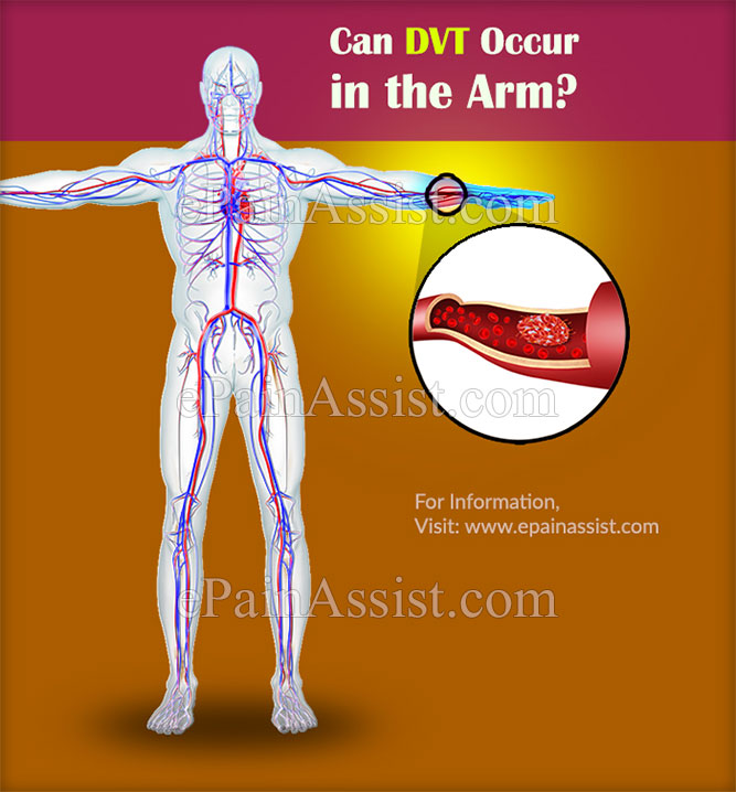 Can DVT Occur in the Arm?