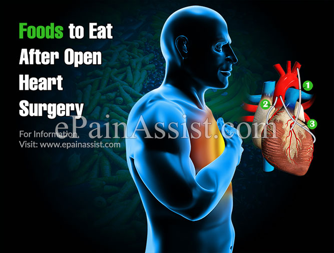 Foods to Eat After Open Heart Surgery