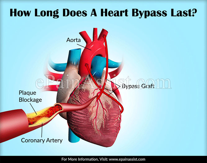 How Long Does the LIMA Heart Bypass Last?