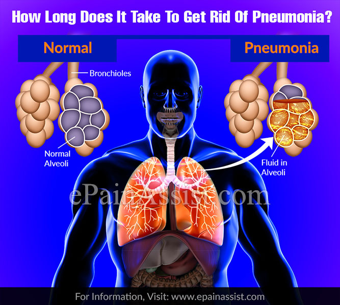 How Long Does It Take To Get Rid Of Pneumonia?