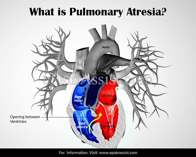 What is Pulmonary Atresia?