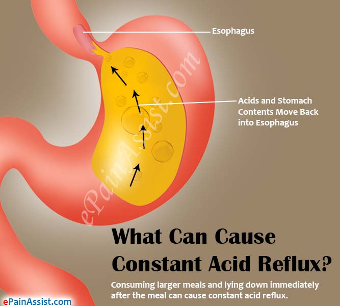 what are the signs of acid reflux