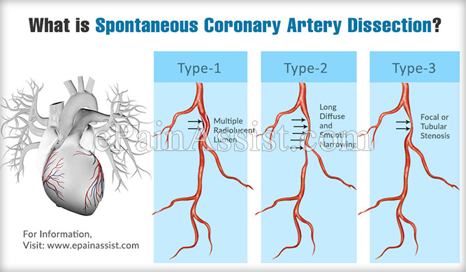 What is Spontaneous Coronary Artery Dissection?