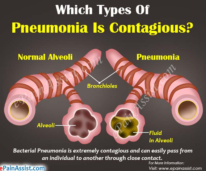Which Type of Pneumonia is Contagious & How Long is Pneumonia Contagious?