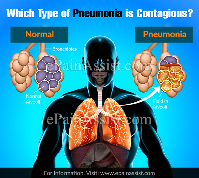Which Types Of Pneumonia Is Contagious?
