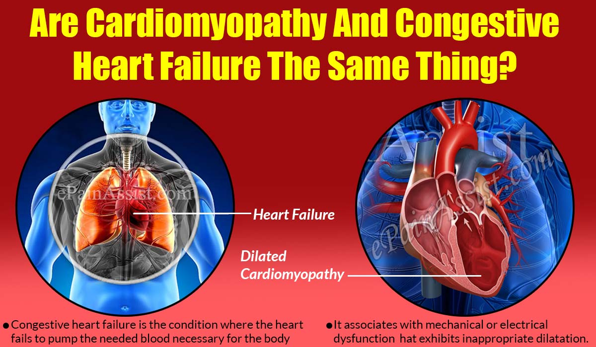 Are Cardiomyopathy And Congestive Heart Failure The Same Thing?