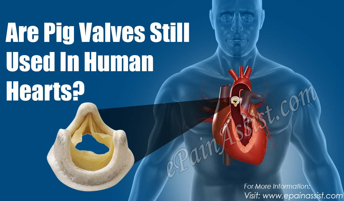 Are Pig Valves Still Used In Human Hearts?