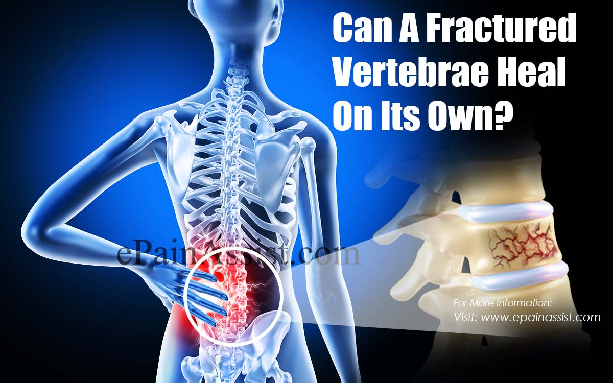 Can A Fractured Vertebrae Heal On Its Own?