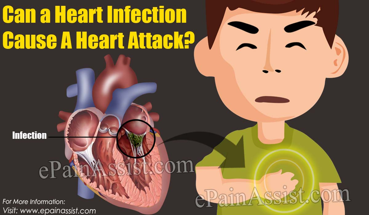 Can a Heart Infection Cause A Heart Attack?